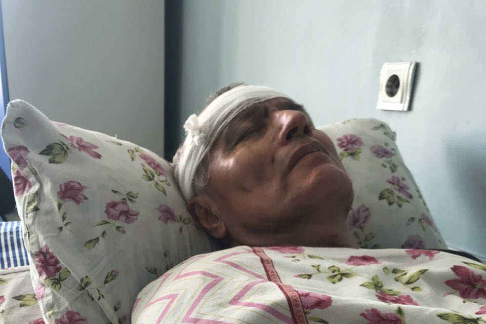 Kadyr Yusupov lying in a hospital bed with a bandage around his forehead