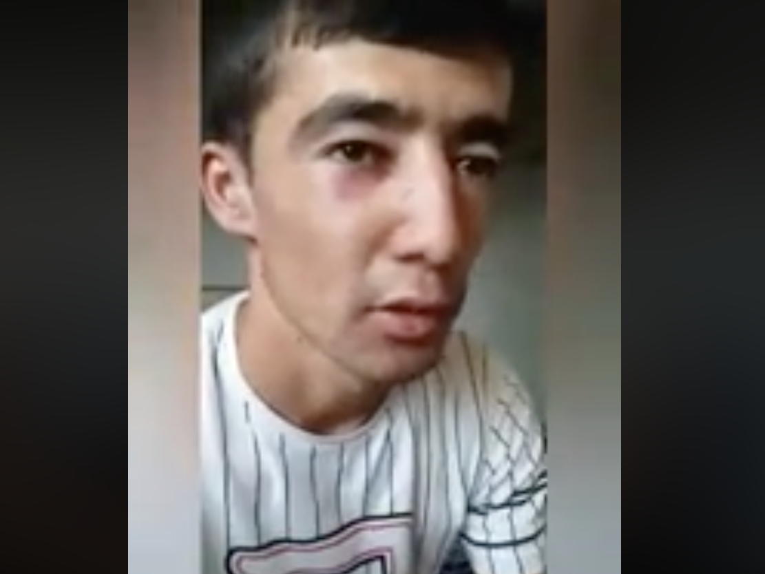 Sardor Norboyev showing his black eye during his video confessional. (Photo: Facebook video screengrab)